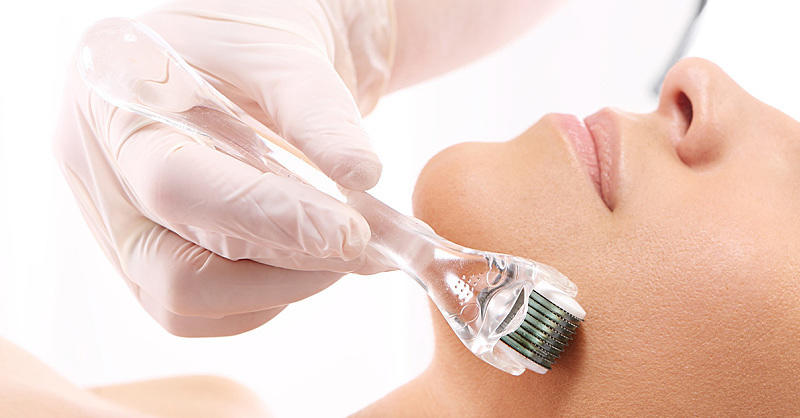Microneedling Is the New Skin-Care Treatment You Should Know About