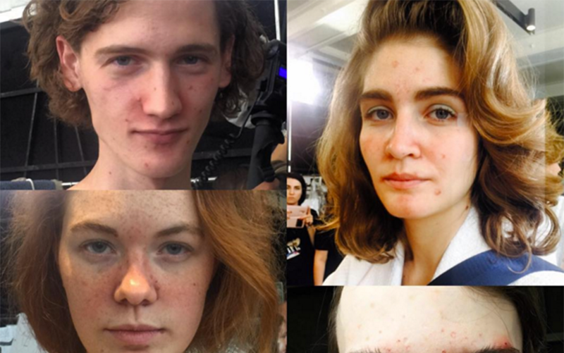 Models Hit the Milan Runway with Visible Acne—And We Love It