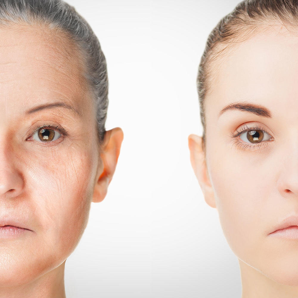 Science Has Uncovered a New Way to Fight Fine Lines and Wrinkles