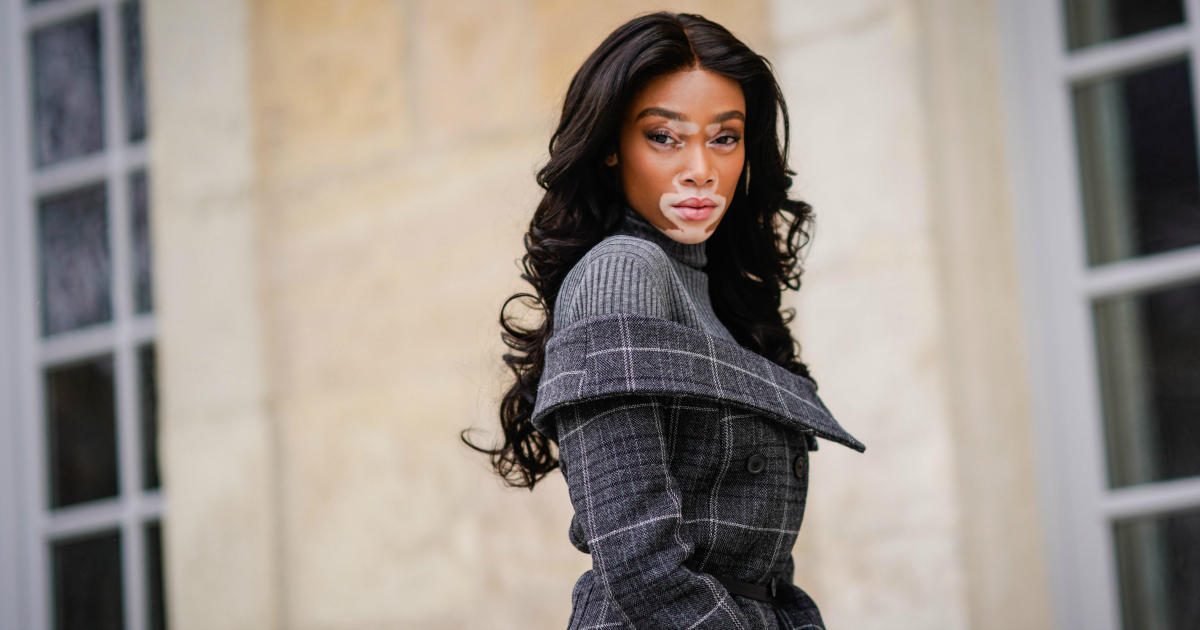 Winnie Harlow Wants You to Know That She's Not