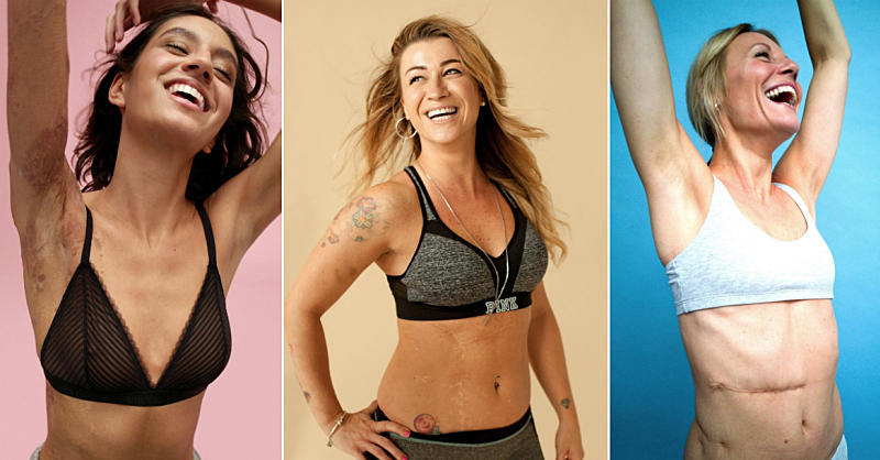 This Photographer Is Destigmatizing Scars By Sharing the Stories Behind Them