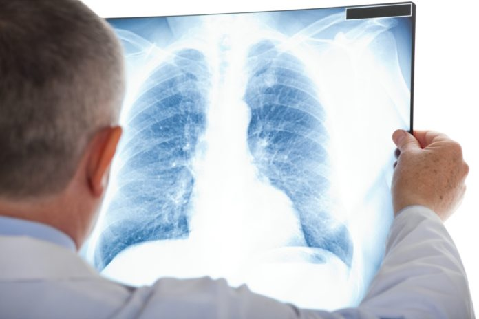 What Happens to Your Lungs on Coronavirus