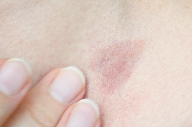 skin rash treatment on woman neck