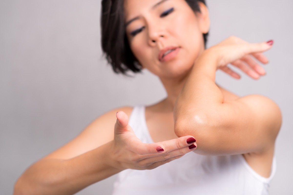 woman applying daily skin care lotion, moisturizer cream, on her elbow. Rough and dry skin