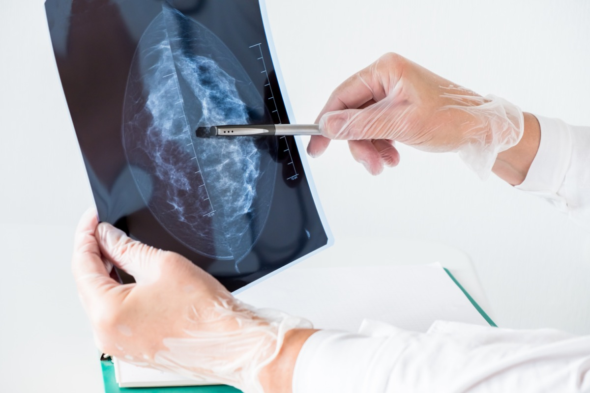Female doctor analyzing mammography results on x-ray.