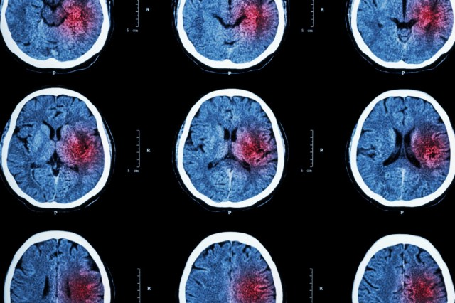 CT scan of brain with red area for hemorrhagic stroke